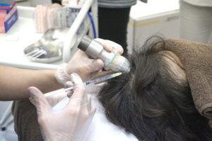 東京ビューティークリニック女性薄毛治療